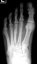 3rd-Met-stress-Fracture-with-callus-formation